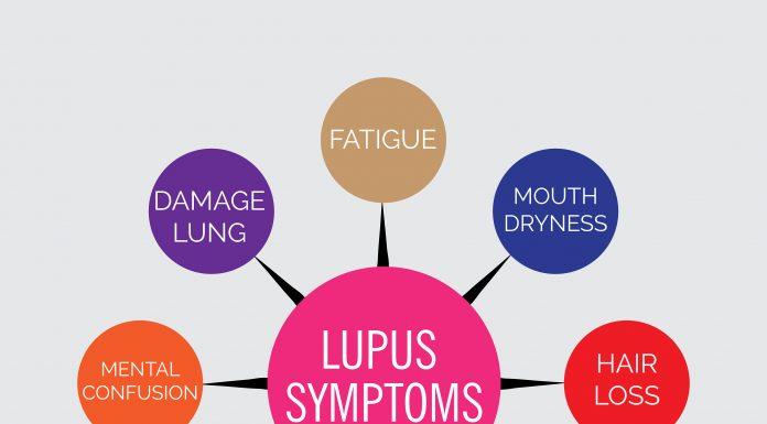 manage lupus