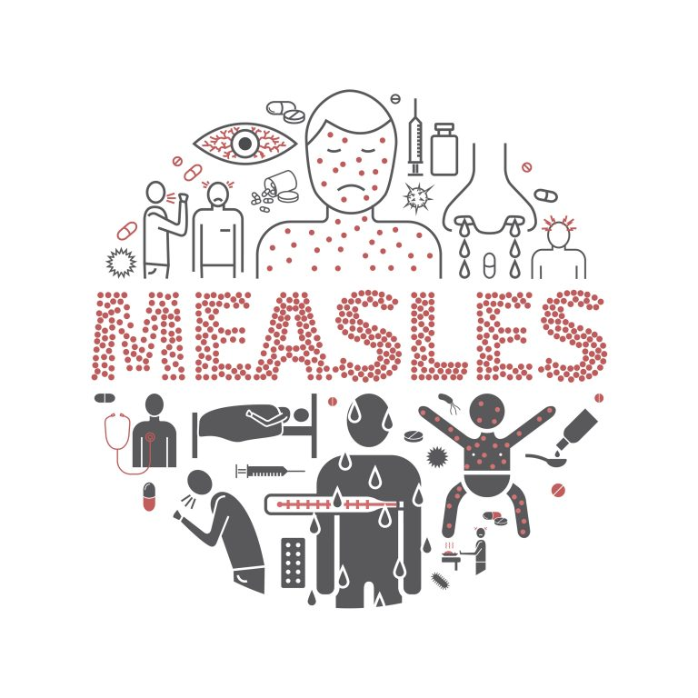 Measles Facts for Older Adults